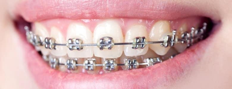 Aparat dentar in vis